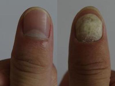 手指甲凹凸不平?或是患了這些病圖片