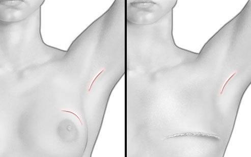 乳腺癌手術治療