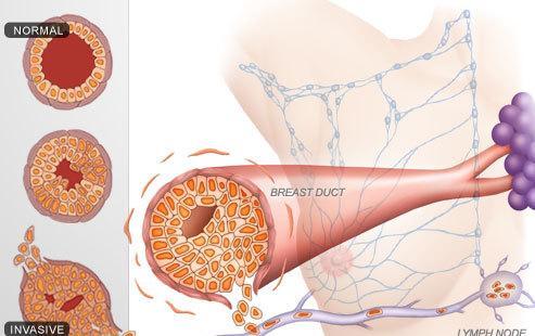 乳腺癌發病階段