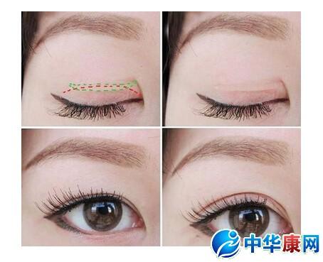 贴多久单眼皮才能变成双眼皮图片